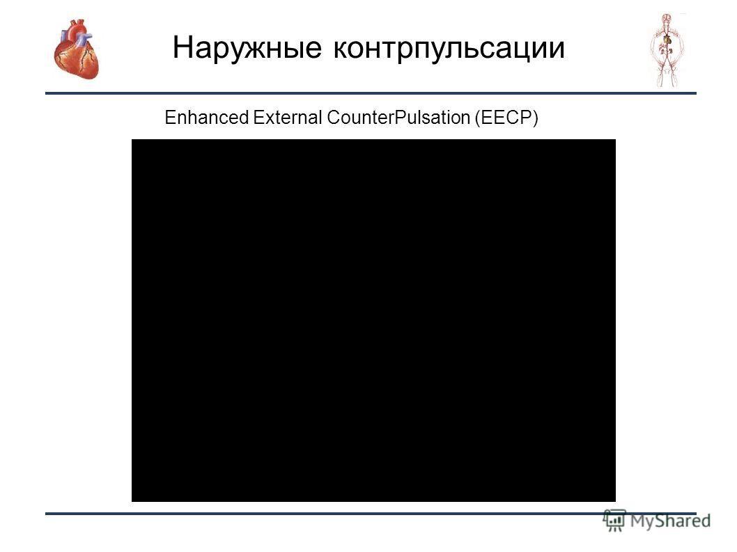 21 Наружные контрпульсации Enhanced External CounterPulsation (EECP)