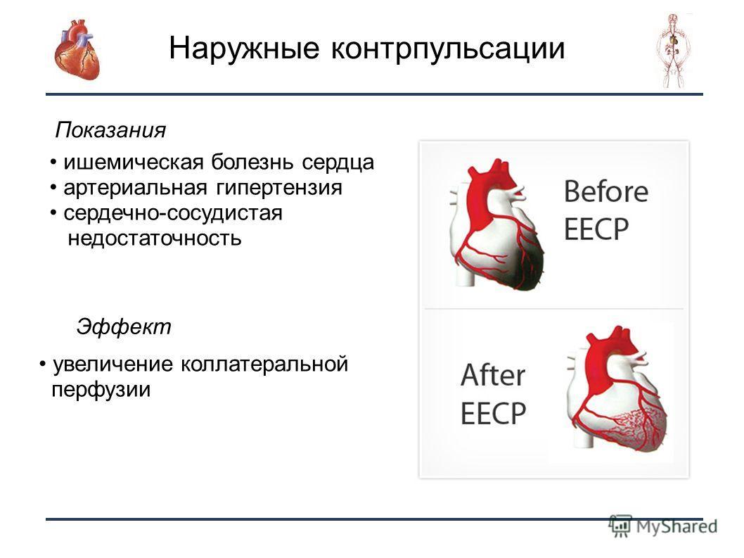 22 Наружные контрпульсации ишемическая болезнь сердца артериальная гипертензия сердечно-сосудистая недостаточность Показания Эффект увеличение коллатеральной перфузии