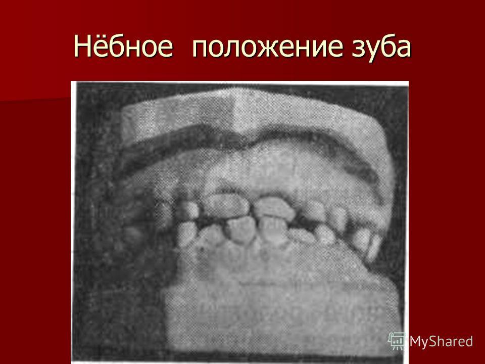 Нёбное положение зуба