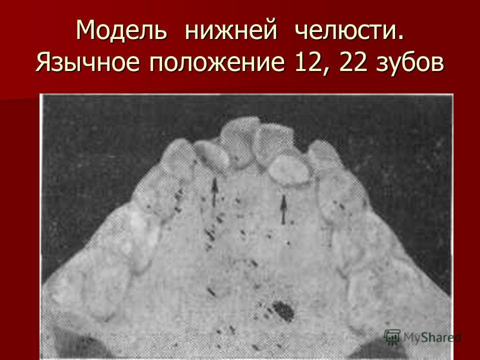 Модель нижней челюсти. Язычное положение 12, 22 зубов