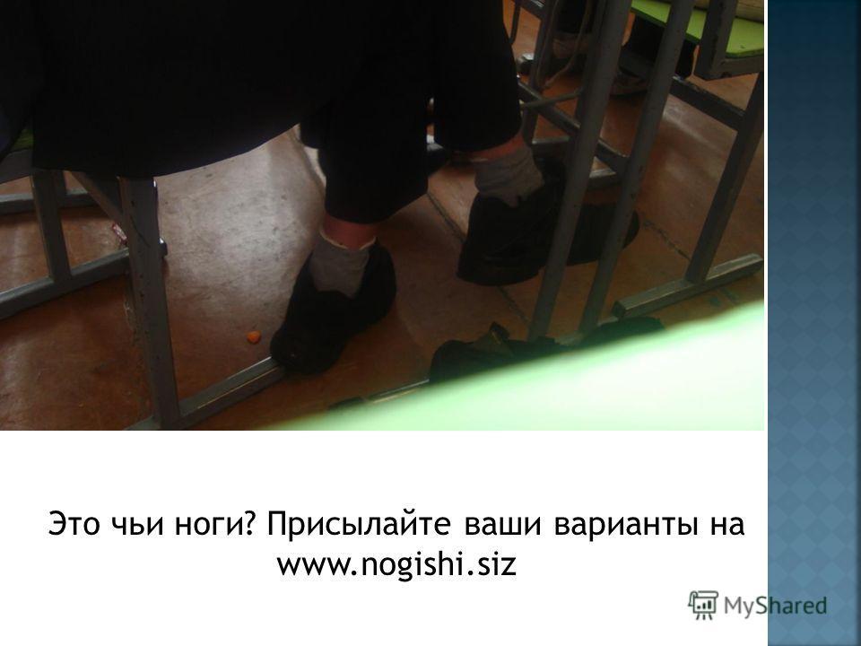 Это чьи ноги? Присылайте ваши варианты на www.nogishi.siz