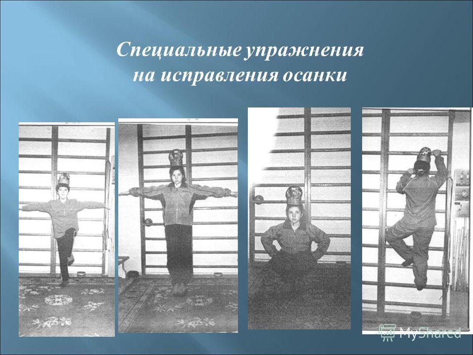 Специальные упражнения на исправления осанки