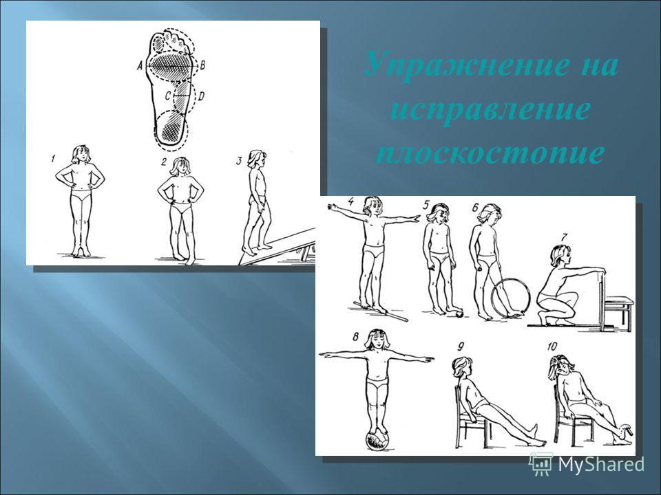 Упражнение на исправление плоскостопие