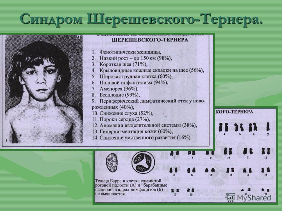 Синдром Шерешевского-Тернера.
