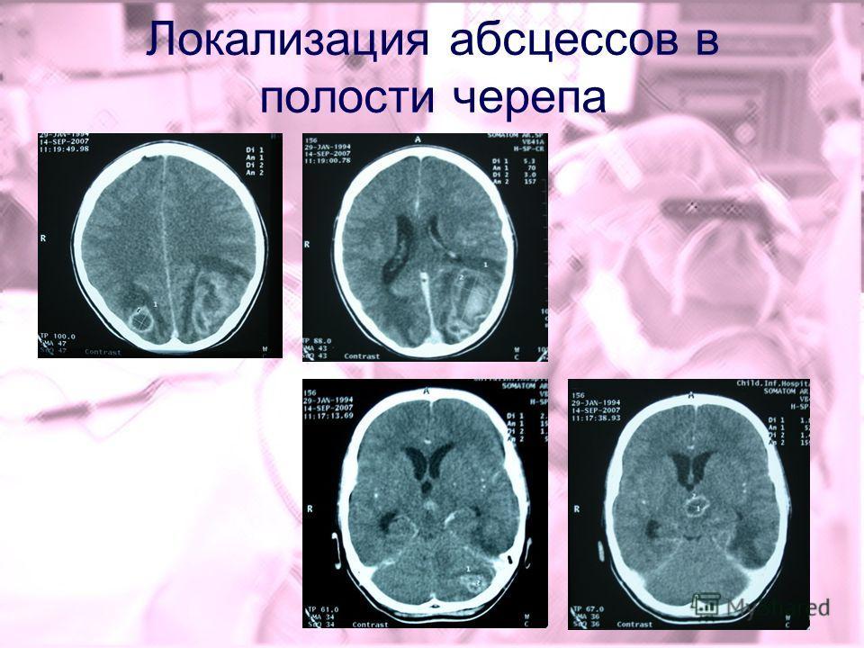 Локализация абсцессов в полости черепа