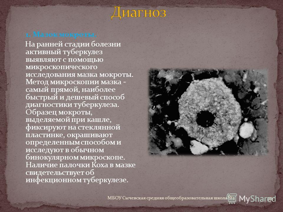 МБОУ Сычевская средняя общеобразовательная школа 1 10 1. Мазок мокроты. На ранней стадии болезни активный туберкулез выявляют с помощью микроскопического исследования мазка мокроты. Метод микроскопии мазка - самый прямой, наиболее быстрый и дешевый с