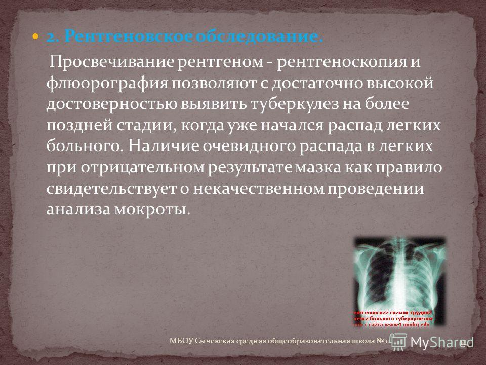 2. Рентгеновское обследование. Просвечивание рентгеном - рентгеноскопия и флюорография позволяют с достаточно высокой достоверностью выявить туберкулез на более поздней стадии, когда уже начался распад легких больного. Наличие очевидного распада в ле