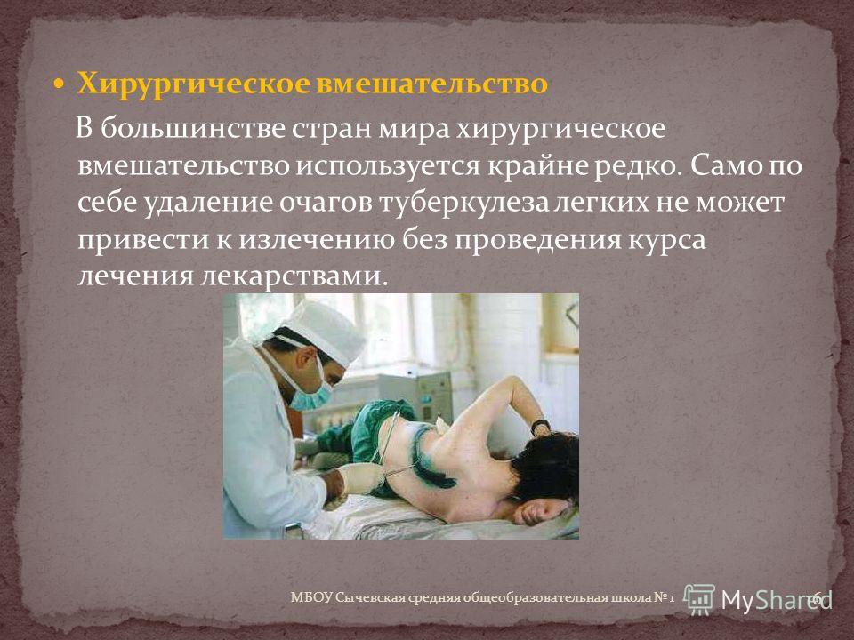 Хирургическое вмешательство В большинстве стран мира хирургическое вмешательство используется крайне редко. Само по себе удаление очагов туберкулеза легких не может привести к излечению без проведения курса лечения лекарствами. 16 МБОУ Сычевская сред