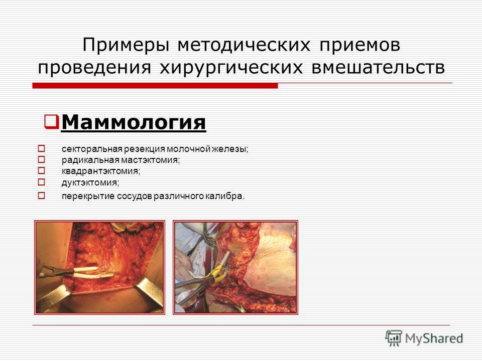 Примеры методических приемов проведения хирургических вмешательств секторальная резекция молочной железы; радикальная мастэктомия; квадрантэктомия; дуктэктомия; перекрытие сосудов различного калибра. Маммология
