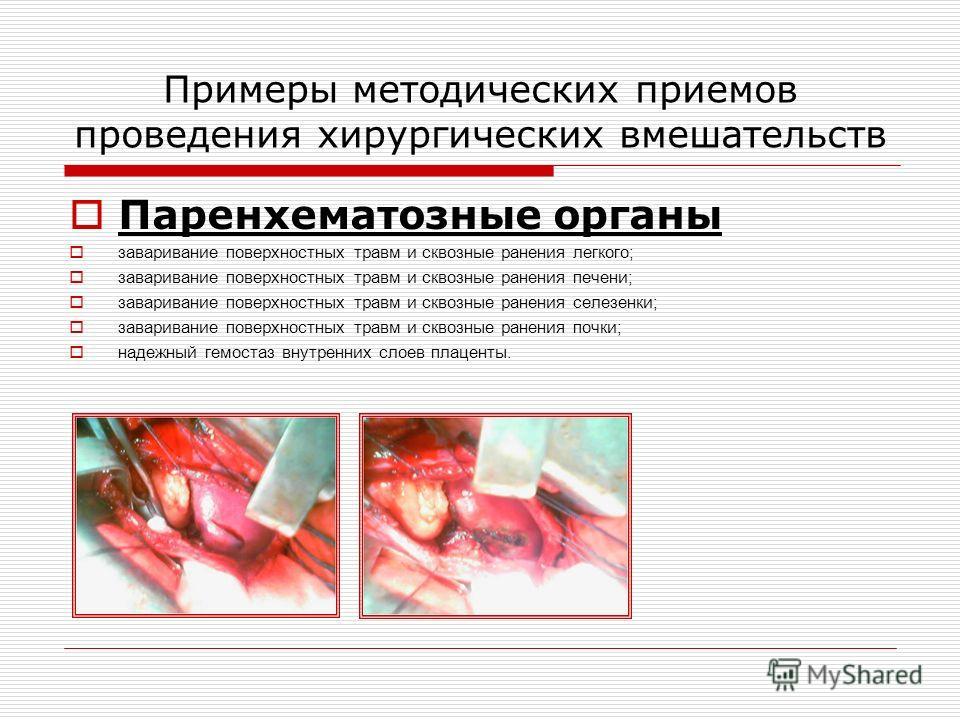 Примеры методических приемов проведения хирургических вмешательств Паренхематозные органы заваривание поверхностных травм и сквозные ранения легкого; заваривание поверхностных травм и сквозные ранения печени; заваривание поверхностных травм и сквозны