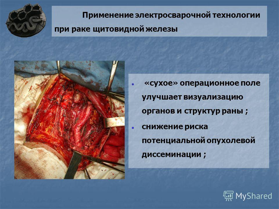 Применение электросварочной технологии при раке щитовидной железы «сухое» операционное поле улучшает визуализацию органов и структур раны ; снижение риска потенциальной опухолевой диссеминации ;