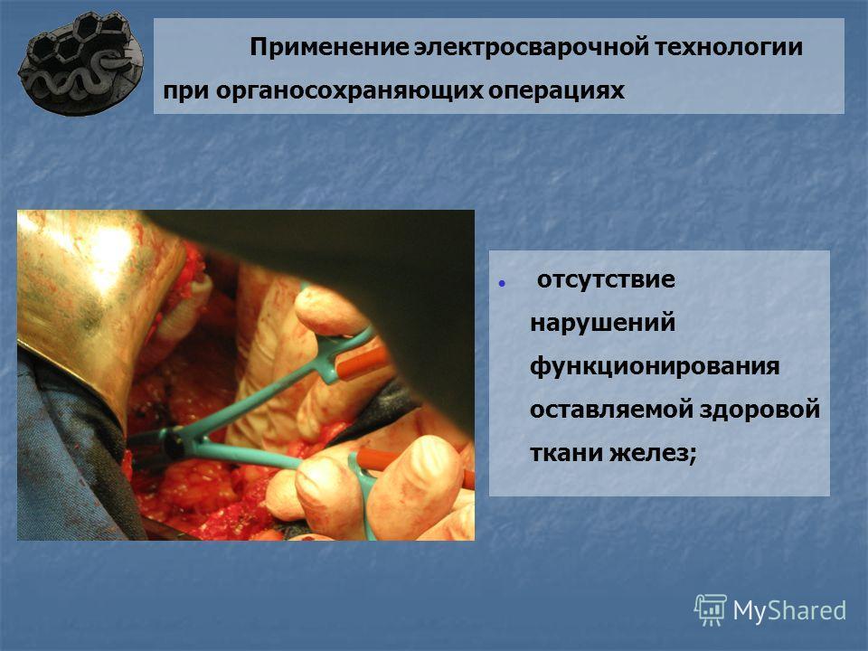 Применение электросварочной технологии при органосохраняющих операциях отсутствие нарушений функционирования оставляемой здоровой ткани желез;