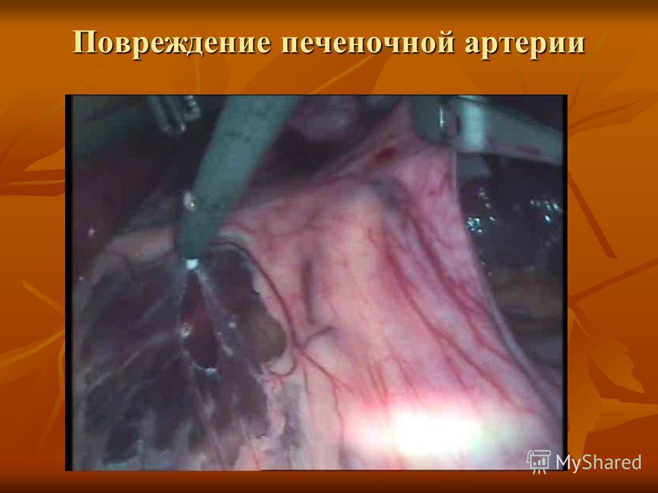 Повреждение печеночной артерии