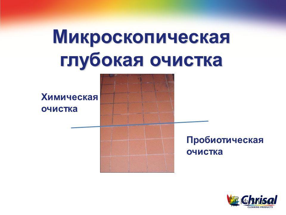 Микроскопическая глубокая очистка Химическая очистка Пробиотическая очистка