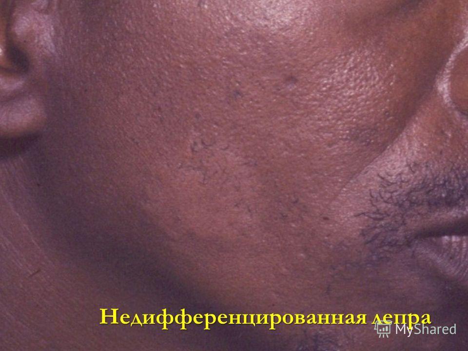 Недифференцированная лепра