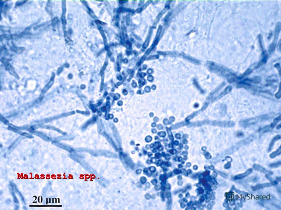 Malassezia spp.