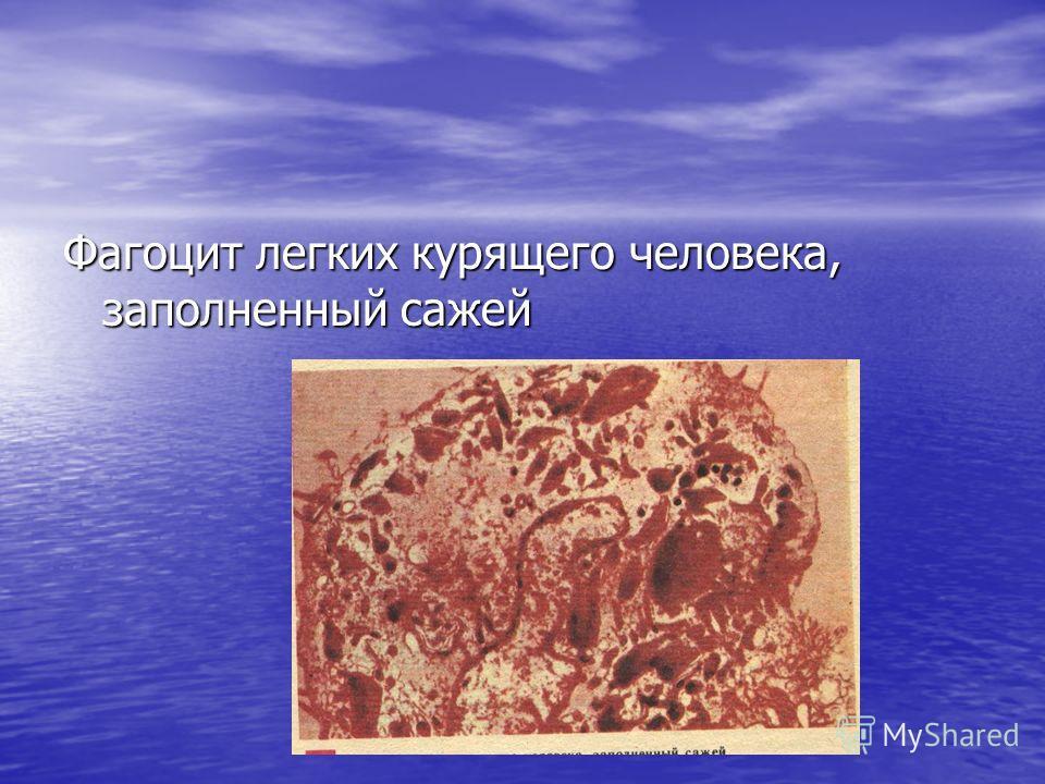 продолжение Легкие некурящего (слева) и курящего (справа) человека Продолжение