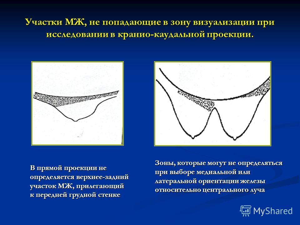 Участки МЖ, не попадающие в зону визуализации при исследовании в кранио-каудальной проекции. В прямой проекции не определяется верхнее-задний участок МЖ, прилегающий к передней грудной стенке Зоны, которые могут не определяться при выборе медиальной