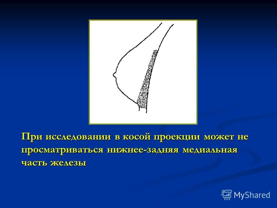 При исследовании в косой проекции может не просматриваться нижнее-задняя медиальная часть железы