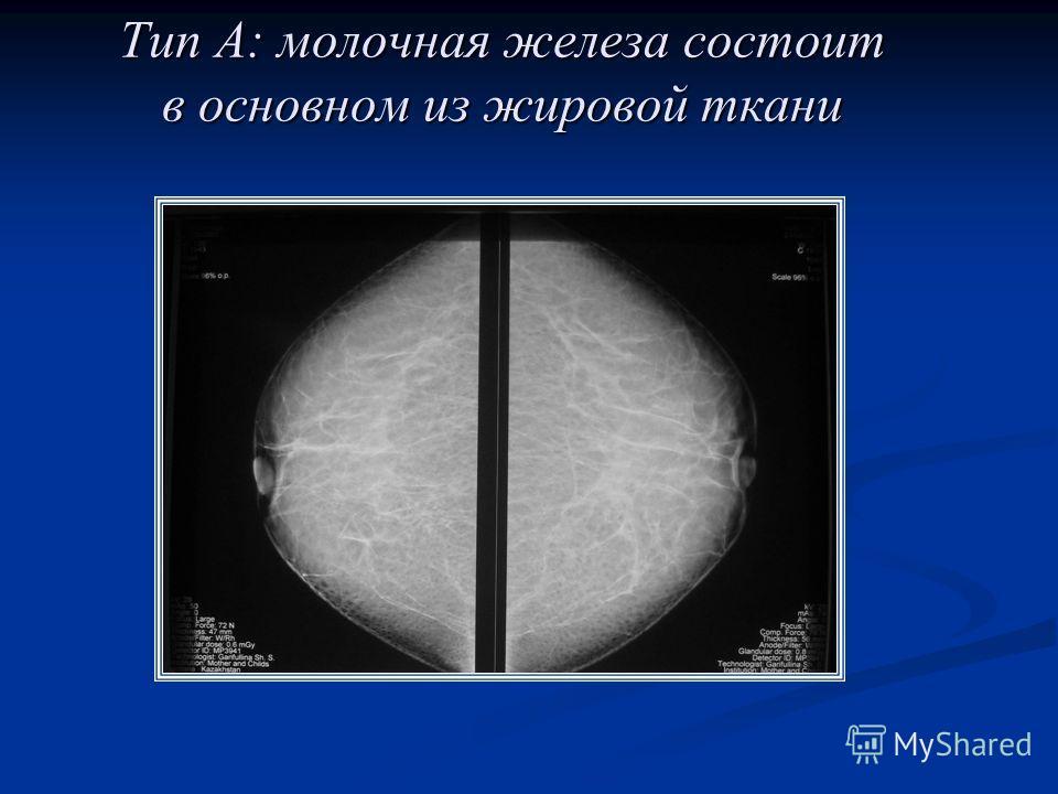 Тип А: молочная железа состоит в основном из жировой ткани
