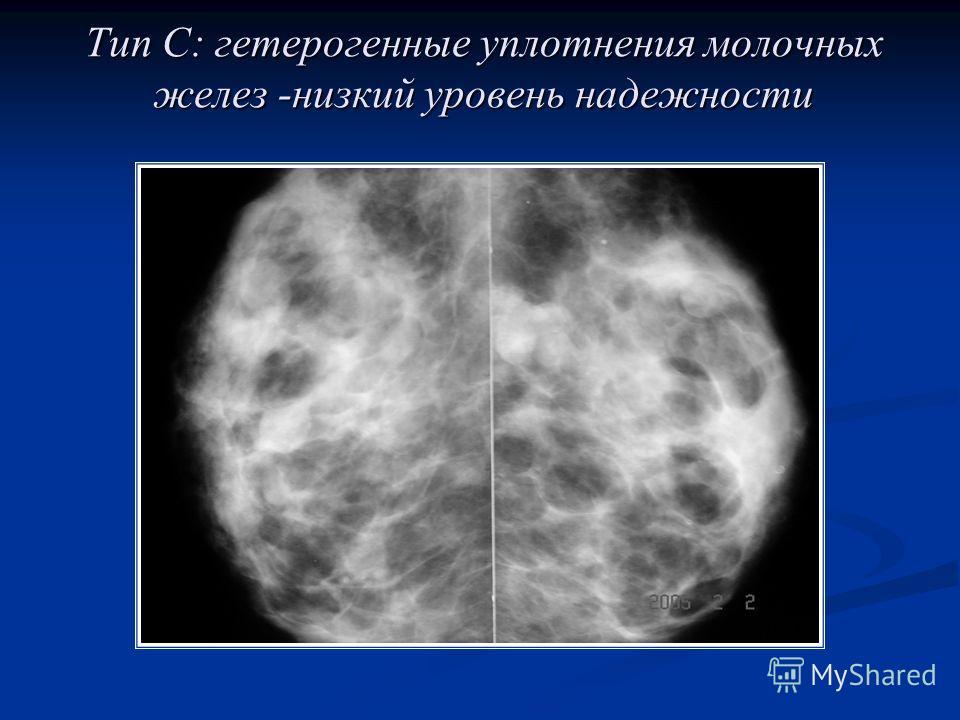 Тип С: гетерогенные уплотнения молочных желез -низкий уровень надежности