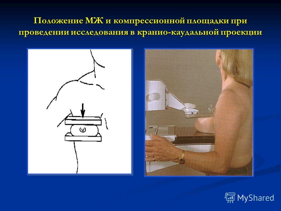 Положение МЖ и компрессионной площадки при проведении исследования в кранио-каудальной проекции