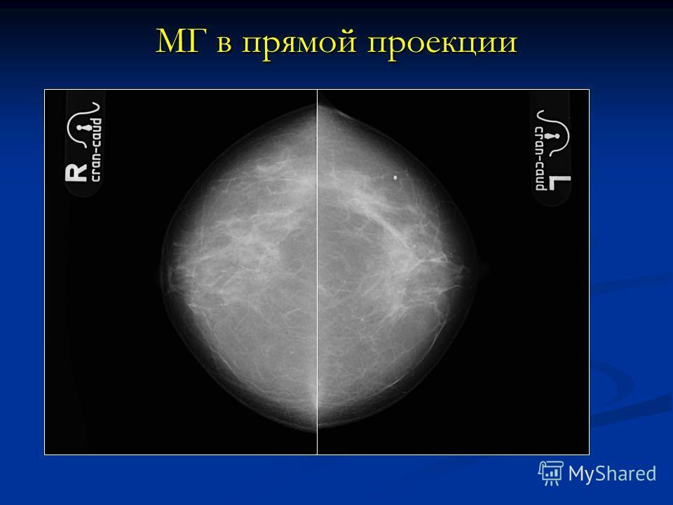 МГ в прямой проекции