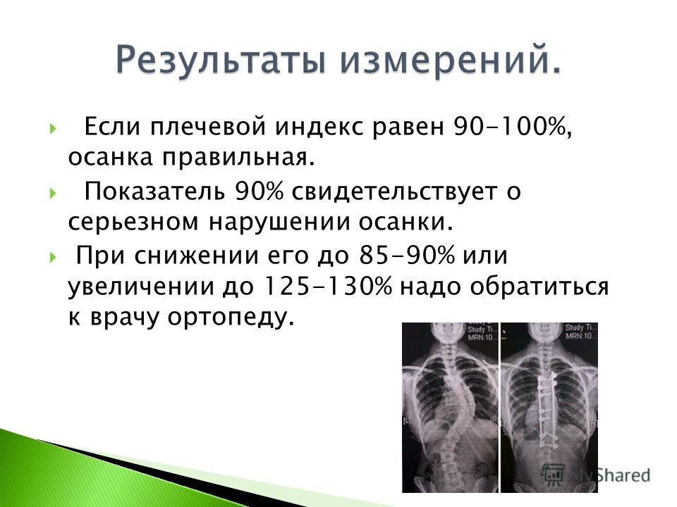 Если плечевой индекс равен 90-100%, осанка правильная. Показатель 90% свидетельствует о серьезном нарушении осанки. При снижении его до 85-90% или увеличении до 125-130% надо обратиться к врачу ортопеду.