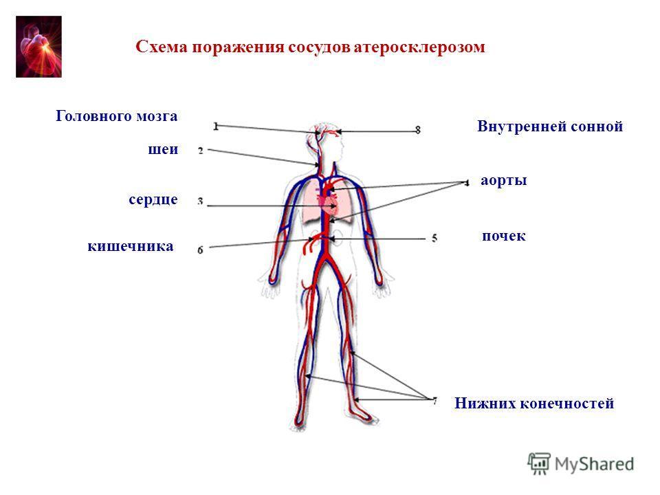 Схема 1. Схема поражения сосудов атеросклерозом сердце кишечника почек Нижних конечностей аорты шеи Головного мозга Внутренней сонной