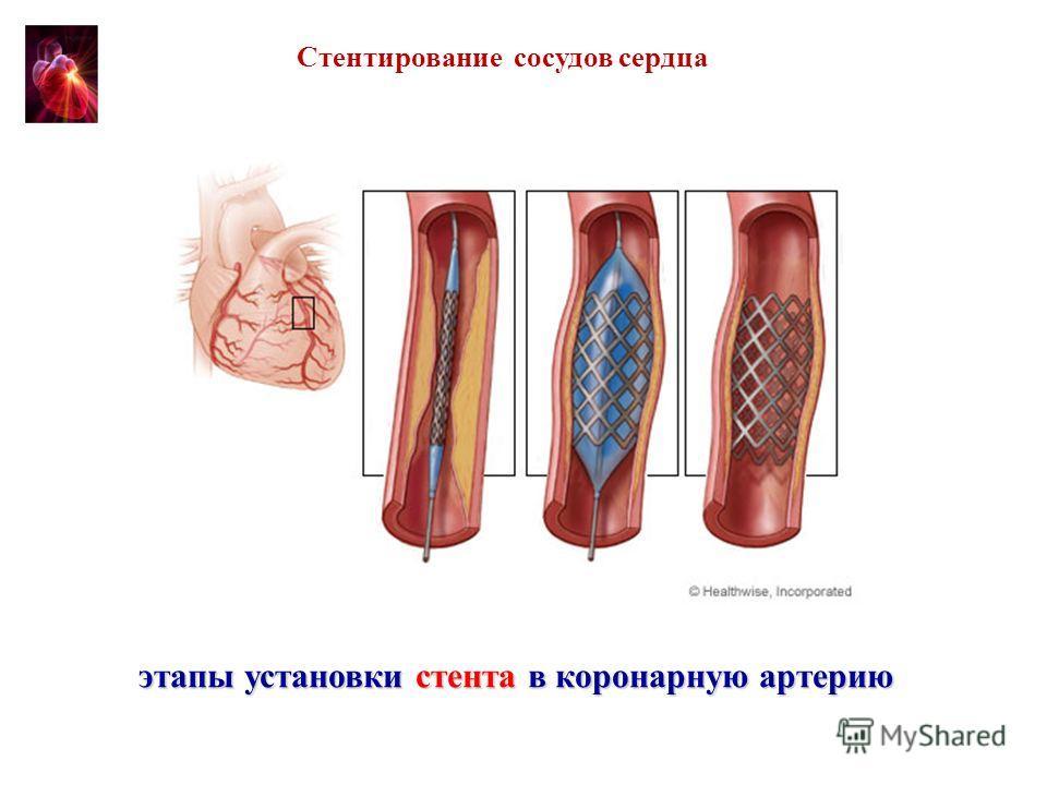 этапы установки стента в коронарную артерию Стентирование сосудов сердца