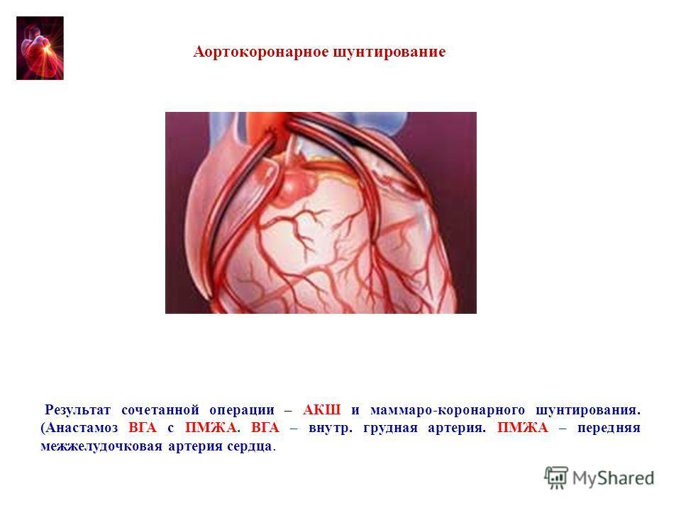 Результат сочетанной операции – АКШ и маммаро-коронарного шунтирования. (Анастамоз ВГА с ПМЖА. ВГА – внутр. грудная артерия. ПМЖА – передняя межжелудочковая артерия сердца. Аортокоронарное шунтирование