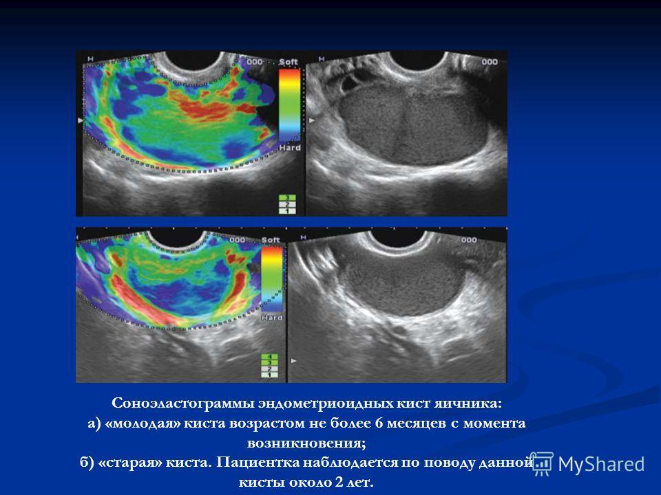 Cоноэластограммы эндометриоидных кист яичника: а) «молодая» киста возрастом не более 6 месяцев с момента возникновения; б) «старая» киста. Пациентка наблюдается по поводу данной кисты около 2 лет.