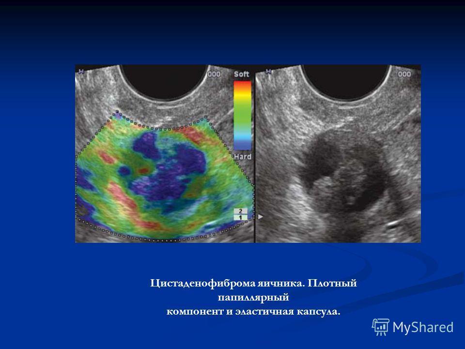 Цистаденофиброма яичника. Плотный папиллярный компонент и эластичная капсула.