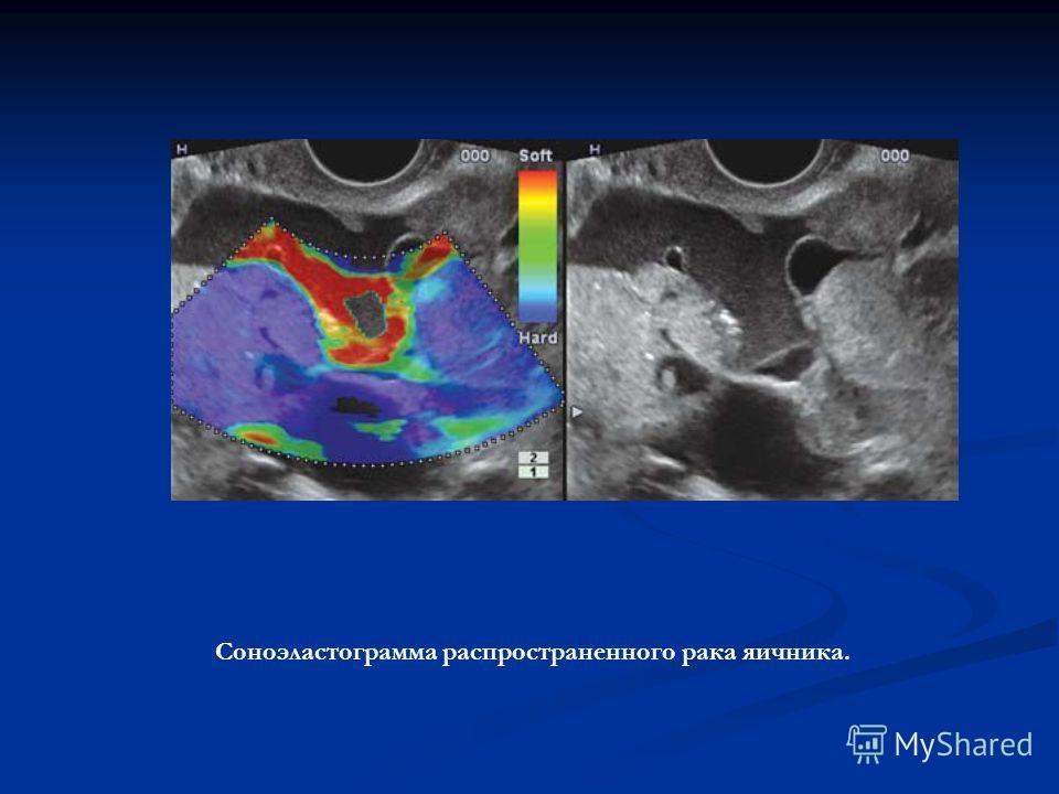 Соноэластограмма распространенного рака яичника.