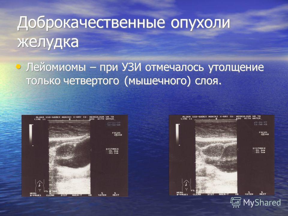 Доброкачественные опухоли желудка Лейомиомы – при УЗИ отмечалось утолщение только четвертого (мышечного) слоя. Лейомиомы – при УЗИ отмечалось утолщение только четвертого (мышечного) слоя.