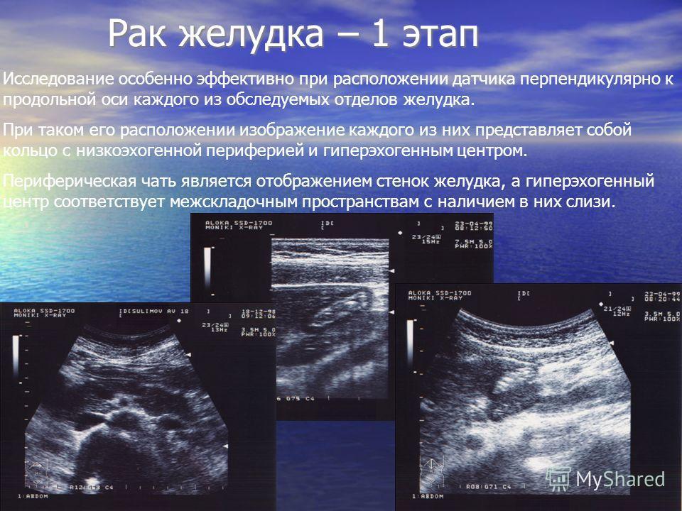 Рак желудка – 1 этап Рак желудка – 1 этап Исследование особенно эффективно при расположении датчика перпендикулярно к продольной оси каждого из обследуемых отделов желудка. При таком его расположении изображение каждого из них представляет собой коль