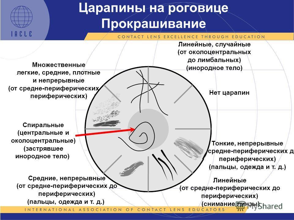 Царапины на роговице Прокрашивание Тонкие, непрерывные (от средне-периферических до периферических) (пальцы, одежда и т. д.) Линейные (от средне-периферических до периферических) (снимание линзы) Средние, непрерывные (от средне-периферических до пери