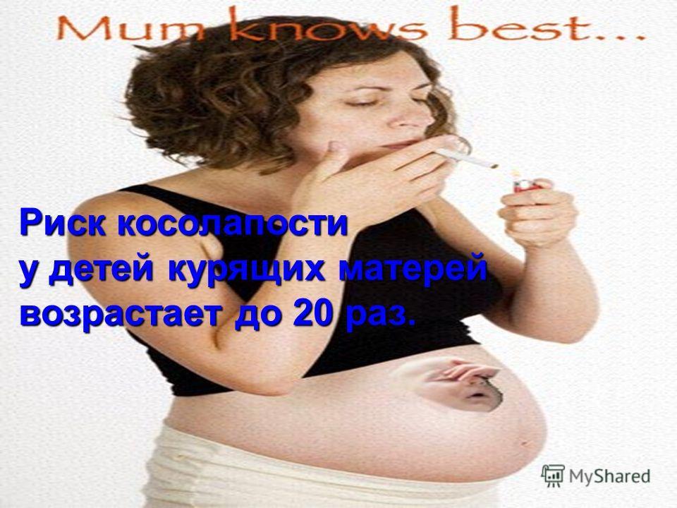 Риск косолапости у детей курящих матерей возрастает до 20 раз.