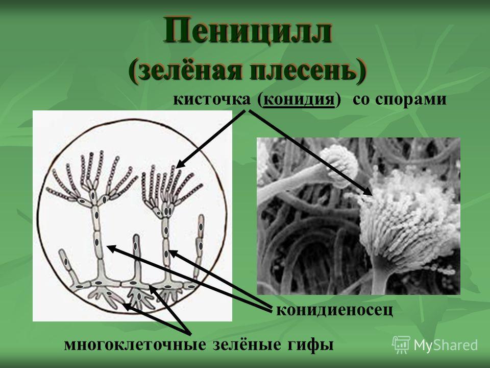 кисточка (конидия) со спорами конидиеносец многоклеточные зелёные гифы