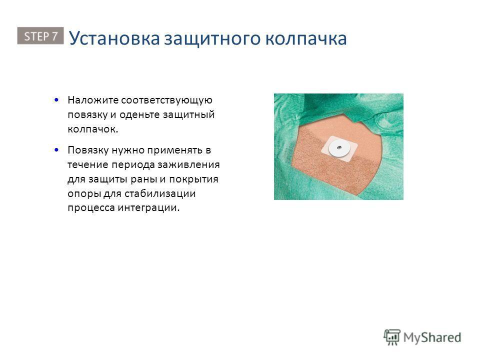 Наложите соответствующую повязку и оденьте защитный колпачок. Повязку нужно применять в течение периода заживления для защиты раны и покрытия опоры для стабилизации процесса интеграции. Установка защитного колпачка