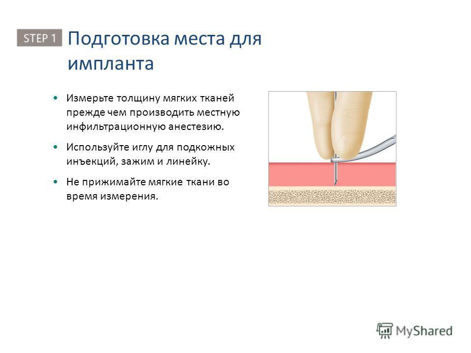 Измерьте толщину мягких тканей прежде чем производить местную инфильтрационную анестезию. Используйте иглу для подкожных инъекций, зажим и линейку. Не прижимайте мягкие ткани во время измерения. Подготовка места для импланта