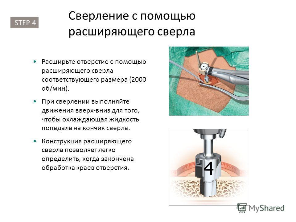 Сверление с помощью расширяющего сверла Расширьте отверстие с помощью расширяющего сверла соответствующего размера (2000 об/мин). При сверлении выполняйте движения вверх-вниз для того, чтобы охлаждающая жидкость попадала на кончик сверла. Конструкция