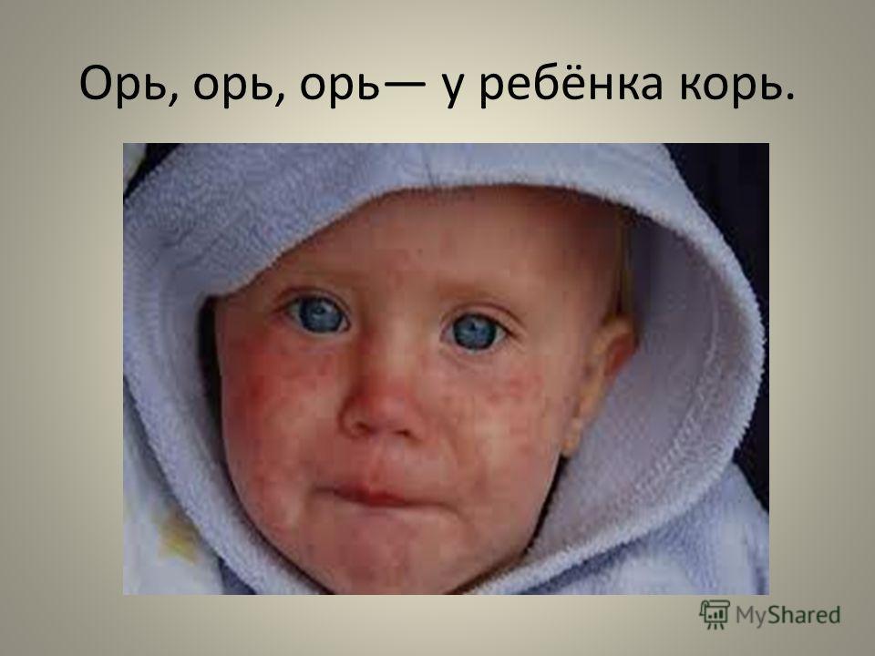 Орь, орь, орь у ребёнка корь.