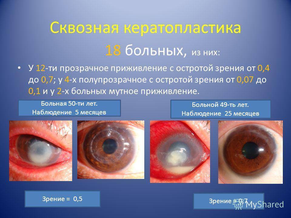 Сквозная кератопластика 18 больных, из них: У 12-ти прозрачное приживление с остротой зрения от 0,4 до 0,7; у 4-х полупрозрачное с остротой зрения от 0,07 до 0,1 и у 2-х больных мутное приживление. Зрение = 0,5 Зрение = 0,7 Больная 50-ти лет. Наблюде
