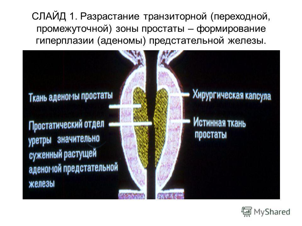 СЛАЙД 1. Разрастание транзиторной (переходной, промежуточной) зоны простаты – формирование гиперплазии (аденомы) предстательной железы.