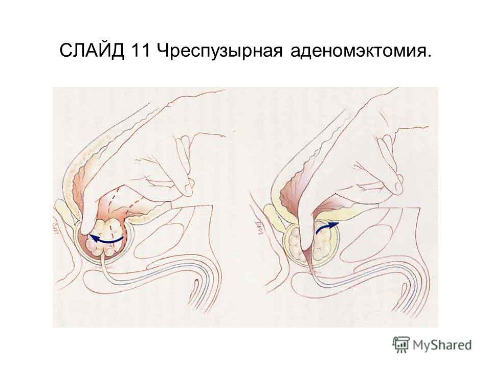 СЛАЙД 11 Чреспузырная аденомэктомия.