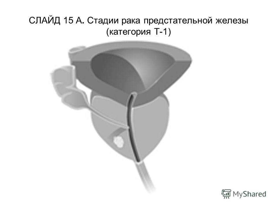 СЛАЙД 15 А. Стадии рака предстательной железы (категория Т-1)