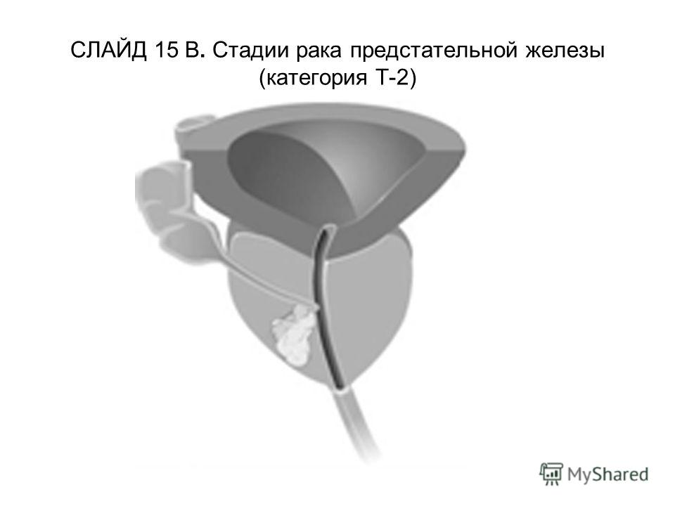 СЛАЙД 15 В. Стадии рака предстательной железы (категория Т-2)