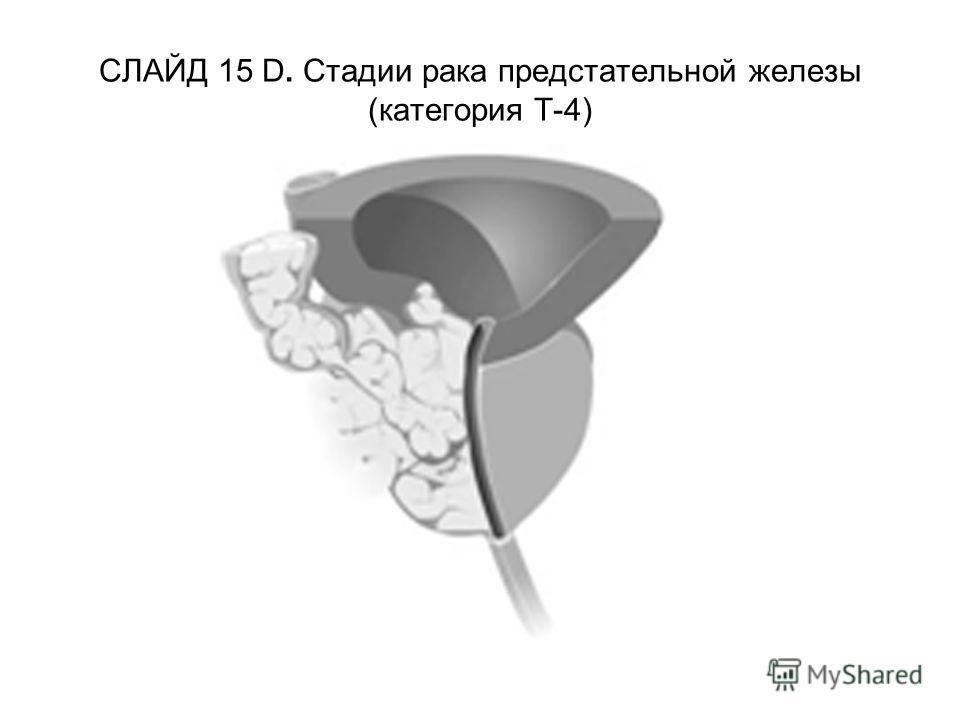 СЛАЙД 15 D. Стадии рака предстательной железы (категория Т-4)