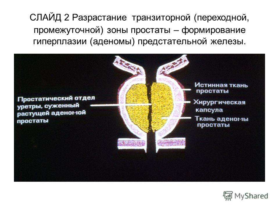 СЛАЙД 2 Разрастание транзиторной (переходной, промежуточной) зоны простаты – формирование гиперплазии (аденомы) предстательной железы.
